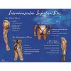 Life/form® Intramuscular Injection Sites Poster
