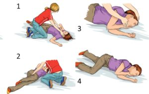 Sudden Cardiac Arrest and AED Use