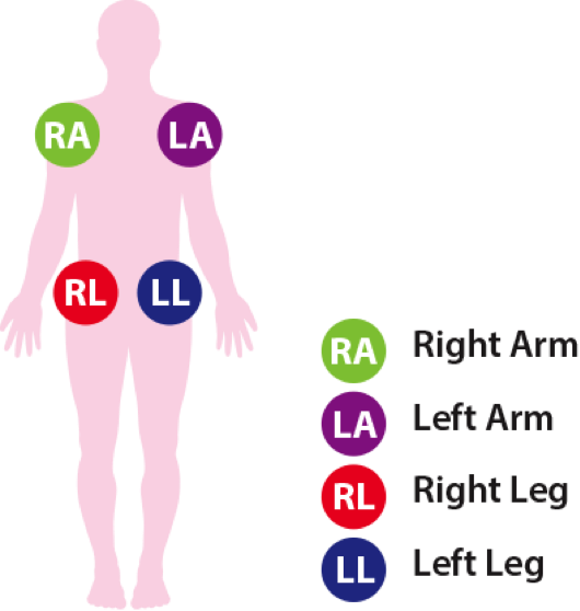 Arm Leg Chart Lead Placement