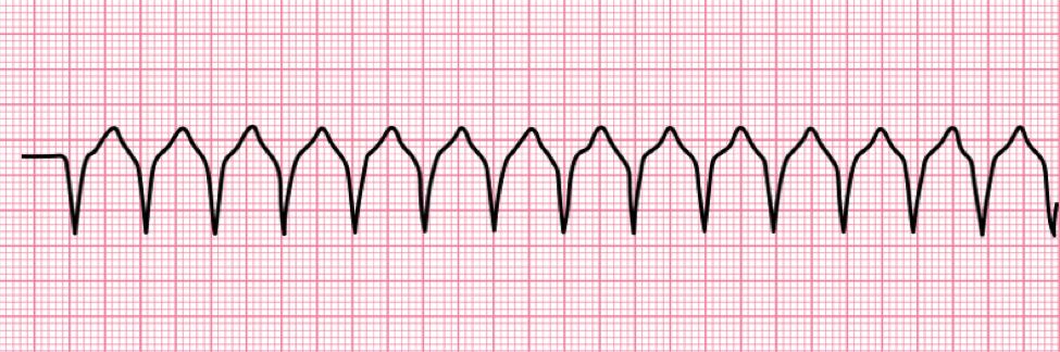 Ventricular tachycardia ECG