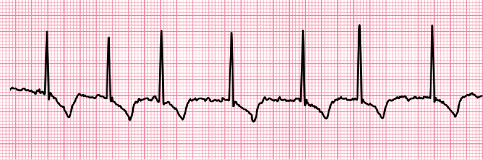 Atrial Fibrillation ECG Chart